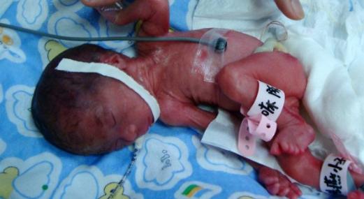 早产儿后遗症有哪些呢