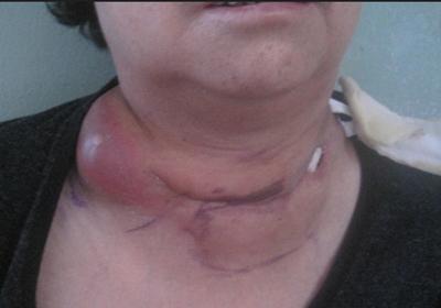 淋巴结核怎么诊断呢