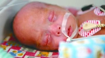 早产儿呼吸急促的解决办法