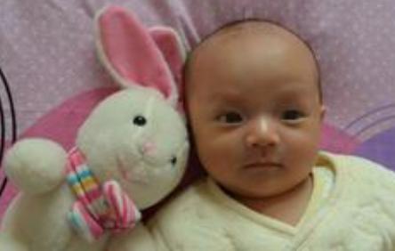 怎样诊断母乳性黄疸呢