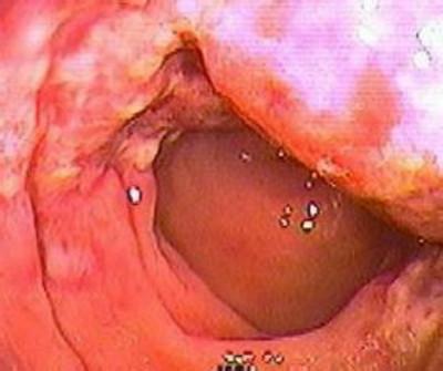 肠梗阻应该做哪些检查呢