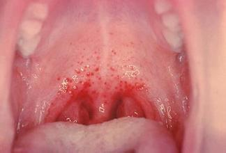 咽炎都有哪些症状呢