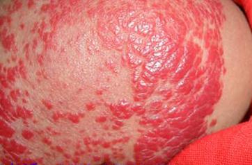 得了血管瘤会遗传吗