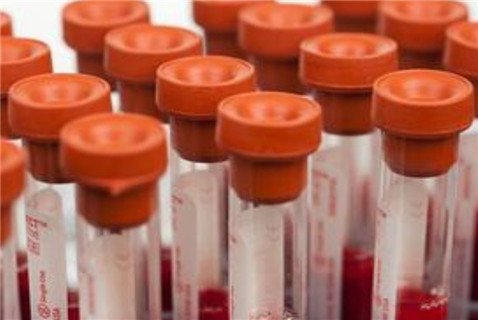 青少年缺铁性贫血有什么并发症
