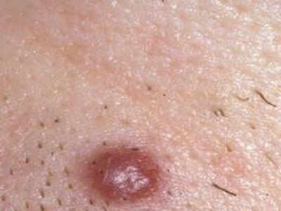 非淋菌性尿道炎如何诊断呢