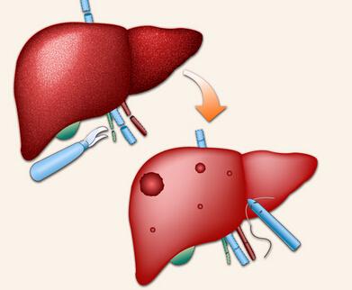 得了脂肪肝是否会传染