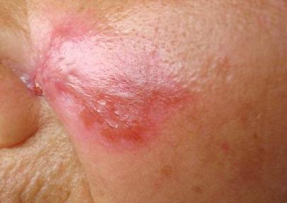 治疗红斑狼疮的中药推荐