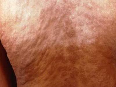 二期梅毒病因有哪些