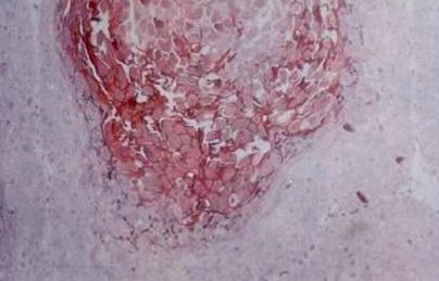 治疗强直性脊柱炎的三类药品介绍