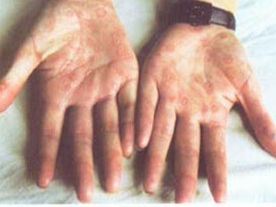 治疗二期梅毒的病例