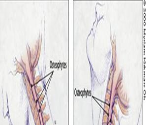 脊髓型颈椎病的病因
