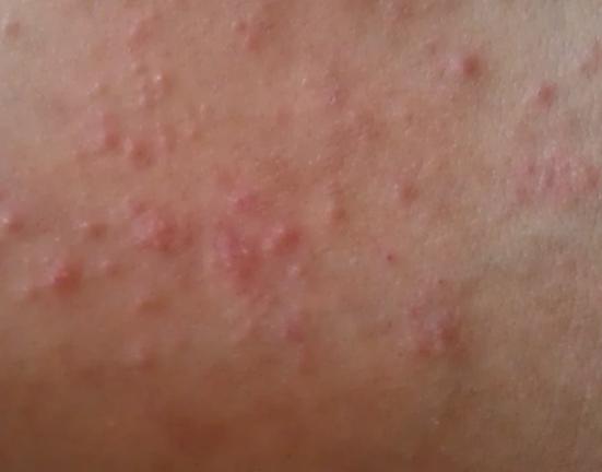 婴儿湿疹用什么方法治疗啊