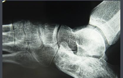 关节痛的实验室检查方法