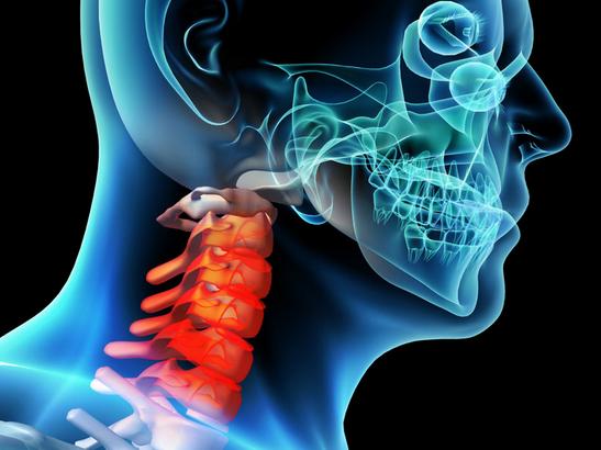 怎样预防神经根型颈椎病?