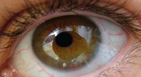 女性治疗青光眼的特效药有什么呢
