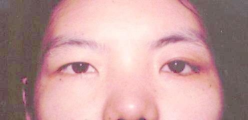 请问女性青光眼中药有哪些