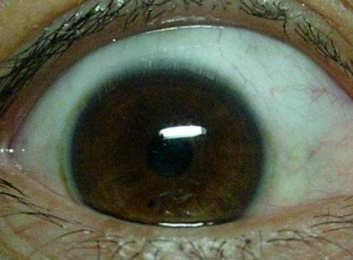 青光眼都有哪些有效的护理措施
