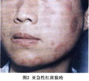 红斑狼疮疾病有哪些治疗措施呢