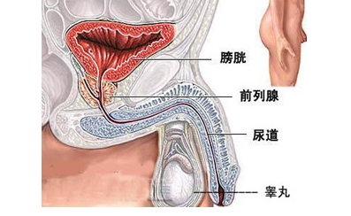 典型病例解析:膀胱癌成功治愈