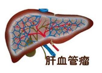 什么叫肝血管瘤
