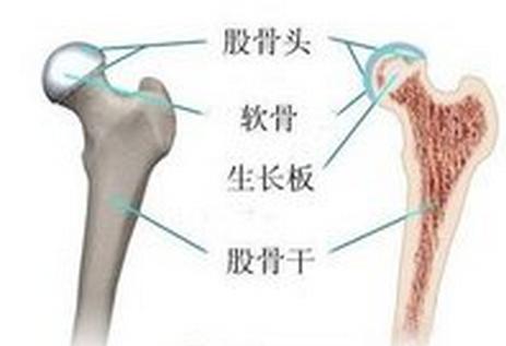 股骨头坏死容易产生哪些并发症