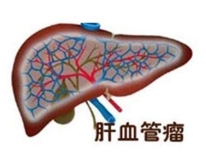 患肝脏血管瘤的原因