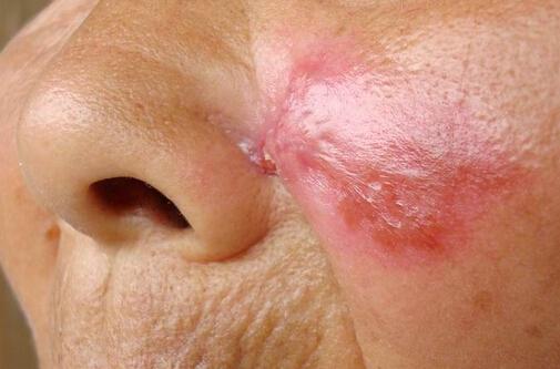系统性红斑狼疮的治疗药物有哪些呢