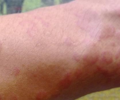 治疗荨麻疹的药物介绍