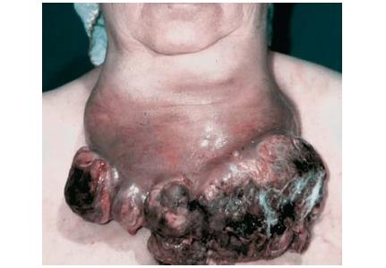 介绍甲状腺癌晚期能够治好吗