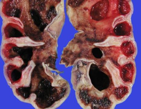 专家解说肾癌复发的因素