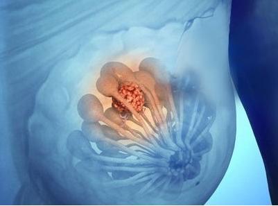 乳腺囊性增生症的检查
