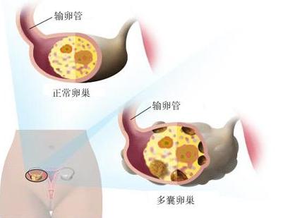多囊卵巢综合征的病因是什么呢