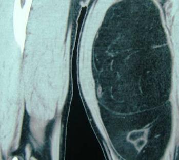 软组织肿瘤应该如何预防呢