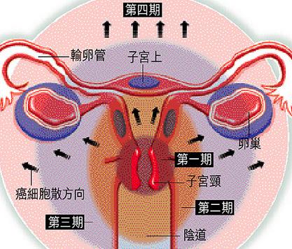 介绍子宫癌的辅助检查方法