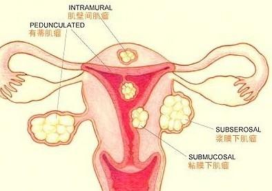 常见的宫肌瘤治疗方法有哪些