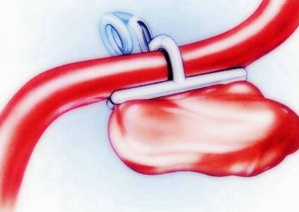 介绍动脉瘤的诊断