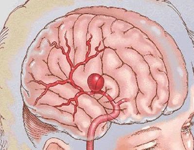 引起动脉瘤的原因都有哪些