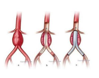 动脉瘤有哪些症状呢