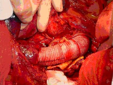 介绍治疗动脉瘤的要点