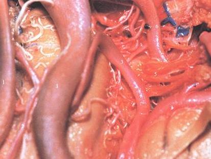 介绍动脉瘤栓塞术后常见的并发症