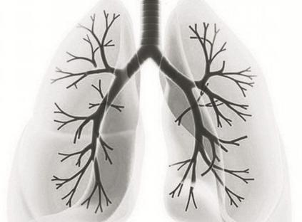 介绍气管肿瘤的病因