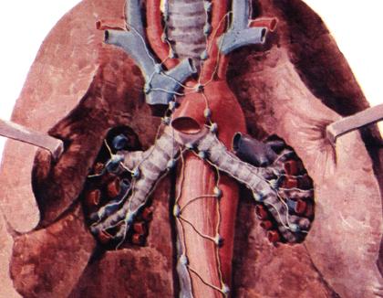 介绍气管肿瘤的并发症