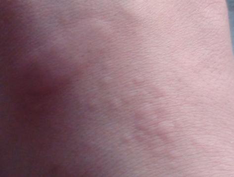 男人荨麻疹的有效治疗方式