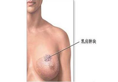 女人怎样治疗早期乳腺增生呢