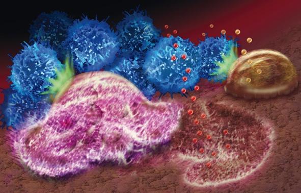 晚期呕吐肝癌怎么治疗