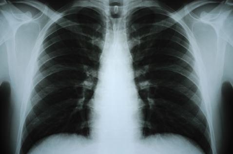 肋骨骨折的诊断依据是什么