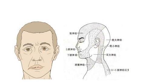 面神经炎前兆有什么呢
