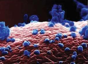 自身免疫性肝炎是怎么回事呢