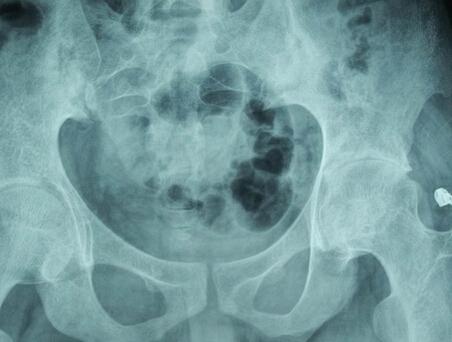 治疗强直性脊柱炎的药物都有哪些