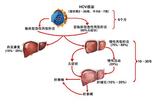 发现肝炎的早期症状表现